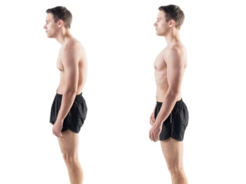 How To Fix Rounded Shoulders Posture - ShreddedCore